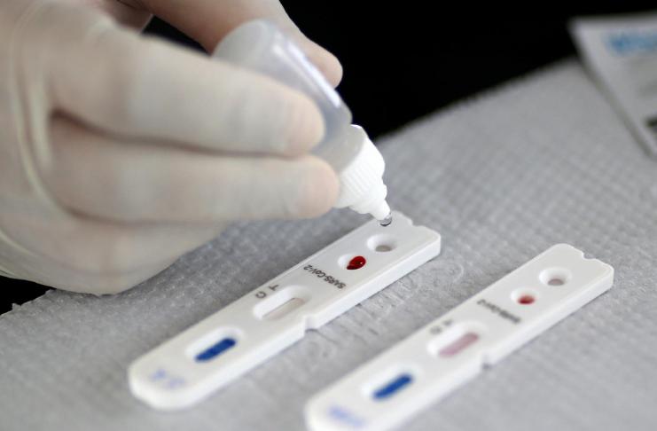 Mercado negro para testes COVID-19 negativos surge em todo o mundo