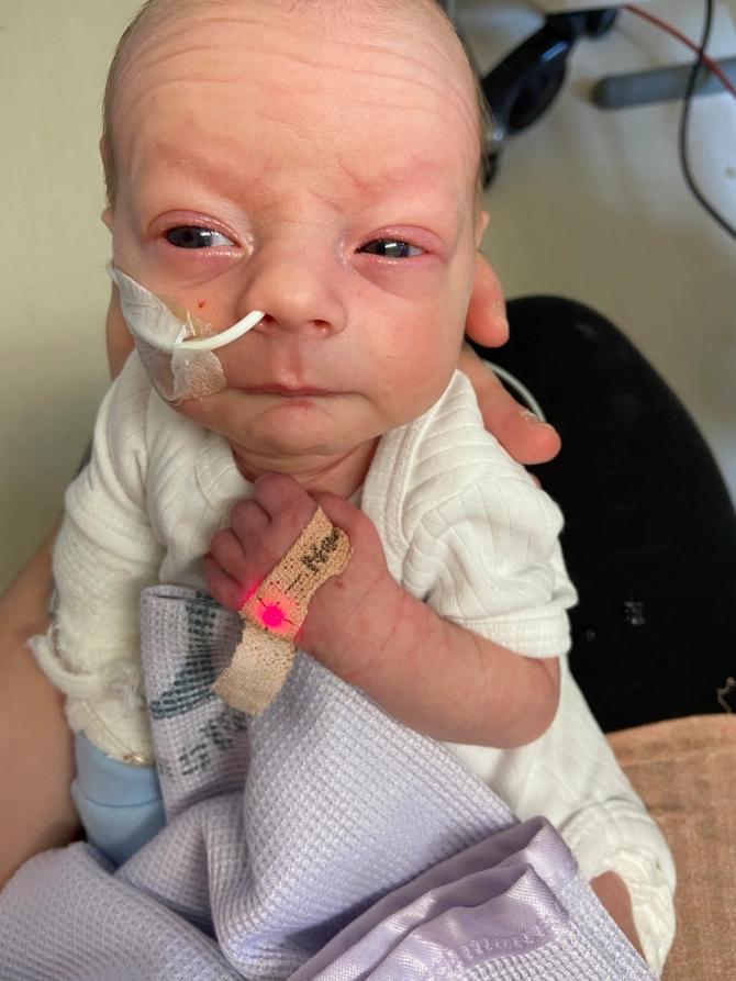 Mulher não sabia que estava grávida e dá à luz em ambulância após suspeita de apendicite